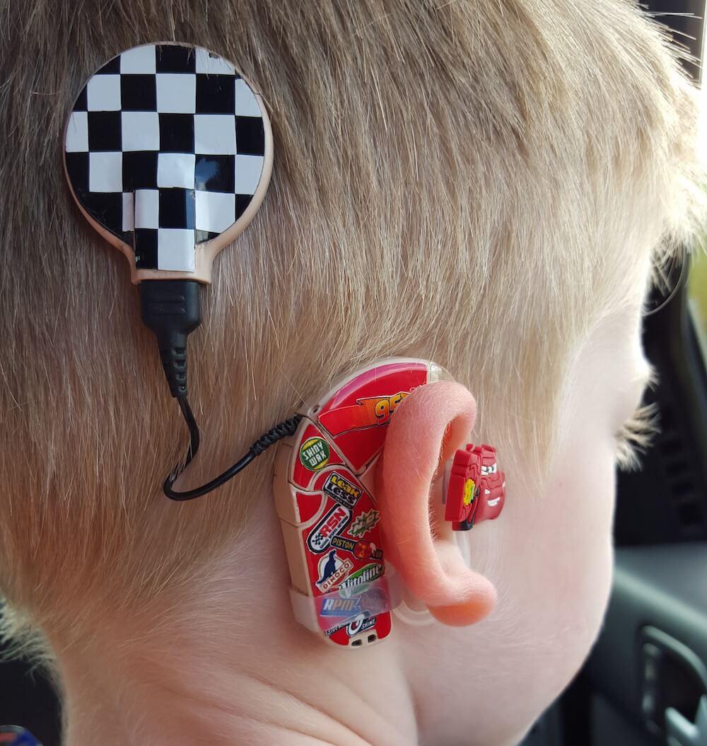 Madre decora audifonos de niños con problema de sordera para mejorar el autostima de cada uno
